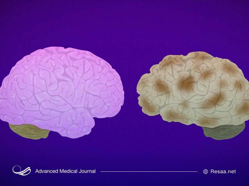 چه عواملی بروز آلزایمر را به تعویق میندازند