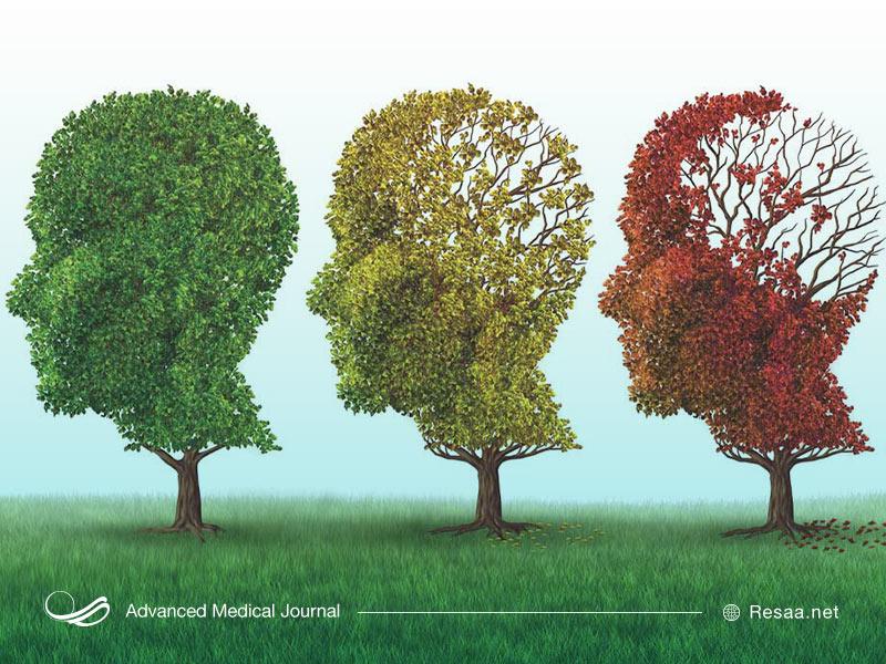 نشانه های بروز آلزایمر