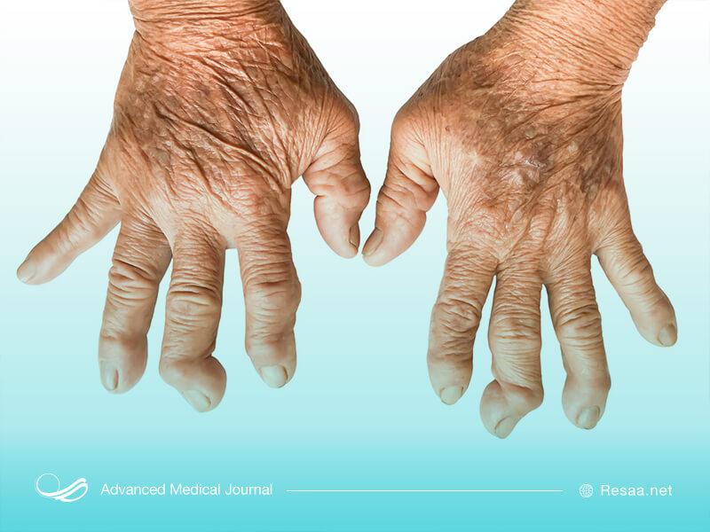بیماری ارتریت روماتوئید و اثر آن روی دست