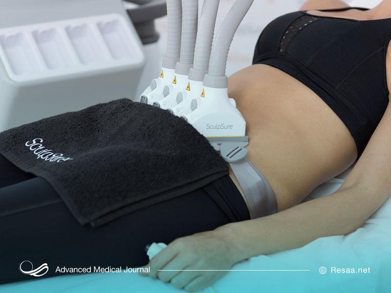 جراحی برای کاهش چربی های شکمی