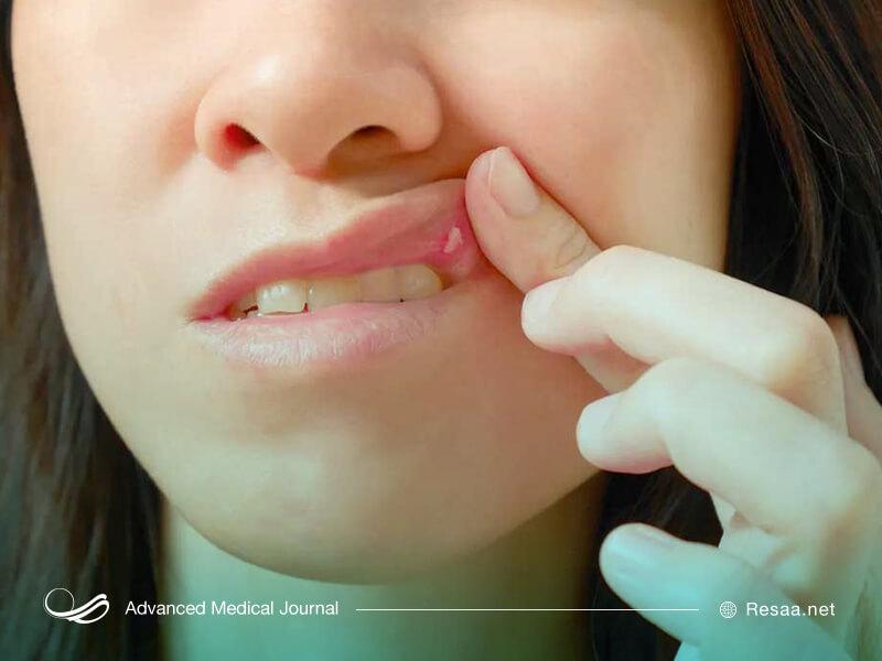 کمبود ویتامینها باعث آفت دهان میشوند.