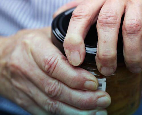 بیماری سندروم تونل کارپال را بشناسیم