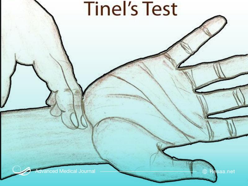 آزمایش تینل برای بررسی وضعیت دست