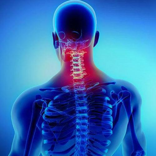 بیماری فتق دیسک گردن