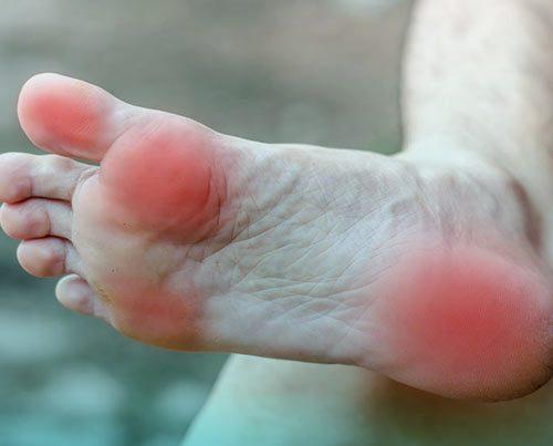 انواع درد کف پا