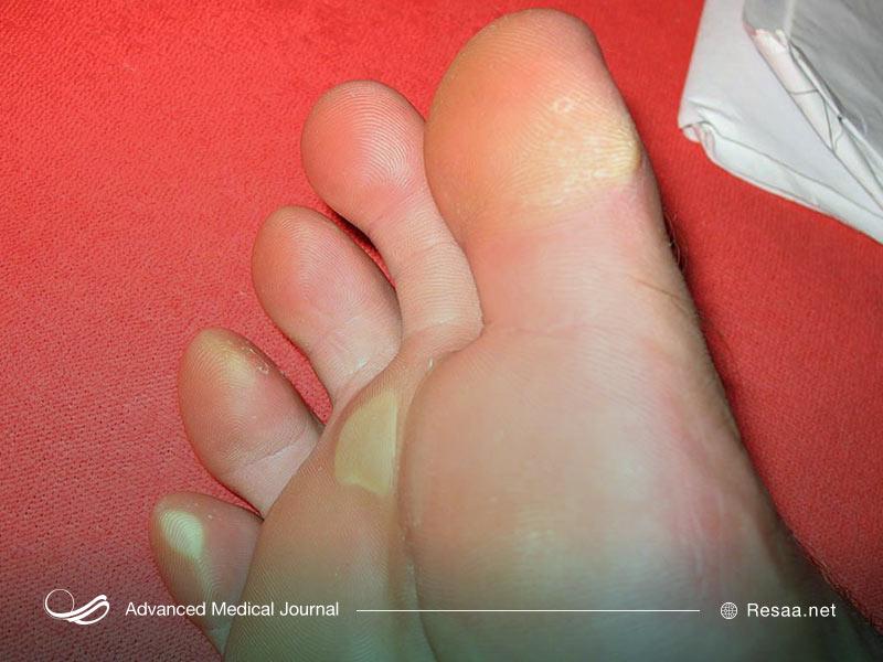 انگشت شست پای چکشی