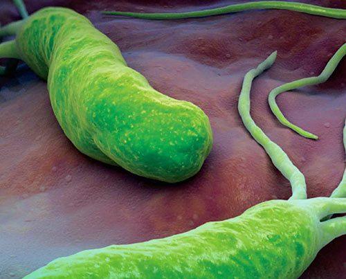 بیماری هلیکوباکتر پیلوری چیست