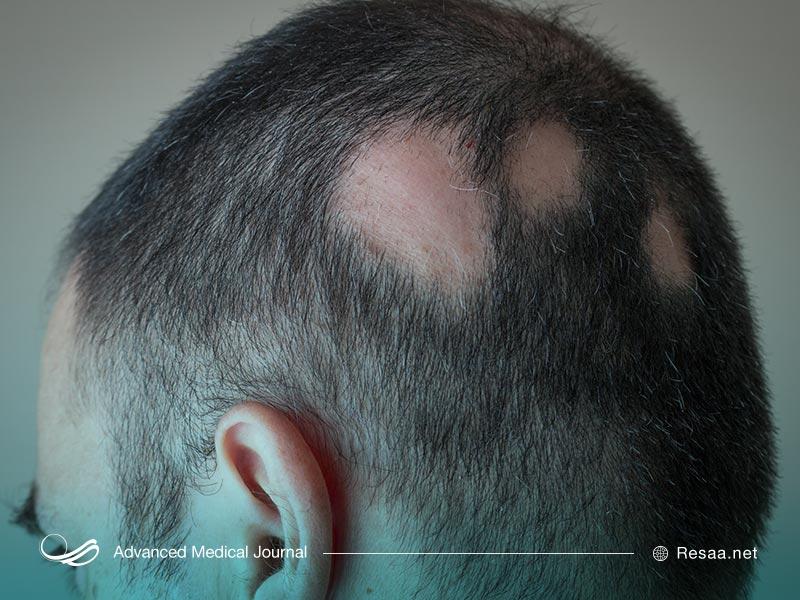 تشخیص ریزش موی غیر طبیعی