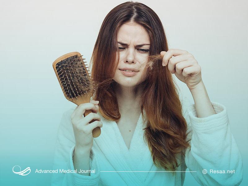 عوامل موثر در ریزش مو