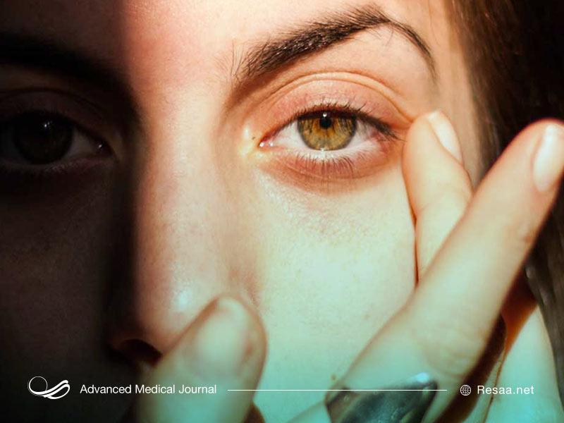 تیک عصبی چشم