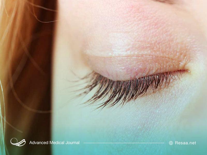 انواع تیک عصبی چشم