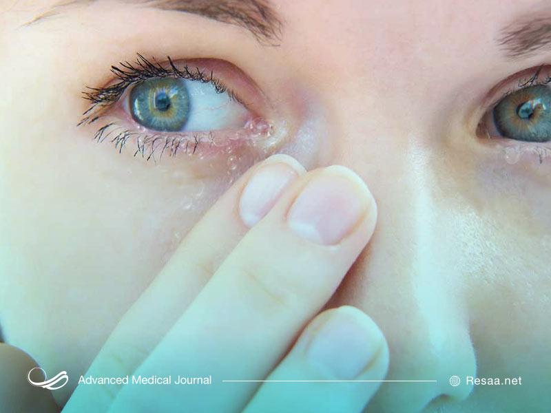 علایم تیک عصبی چشم