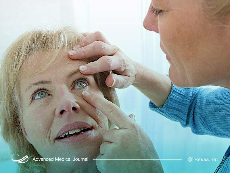 تشخیص تیک عصبی چشم