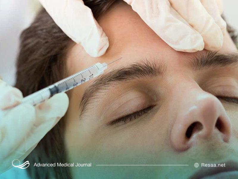 عمل جراحی برای بهبود پرش پلک