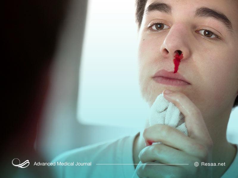 ضربه به بینی و خونریزی بینی