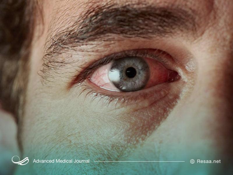 رتینوپاتی دیابتی میتواند منجر به از دست دادن بینایی شود