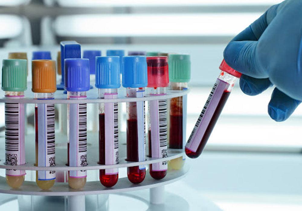 بیماری پلاکت خون بالا چیست؟ علائم و درمان پلاکت بالا