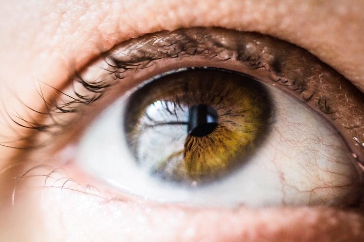 بیماری تیروئید چشمی چیست؟ تشخیص و درمان آن