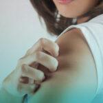 بیماری زونا چیست؟ علائم و درمان زونا