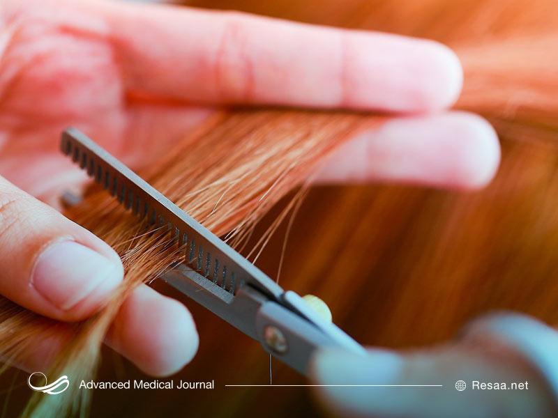 استرس عاملی مهم برای ضعیف شدن موهای سر