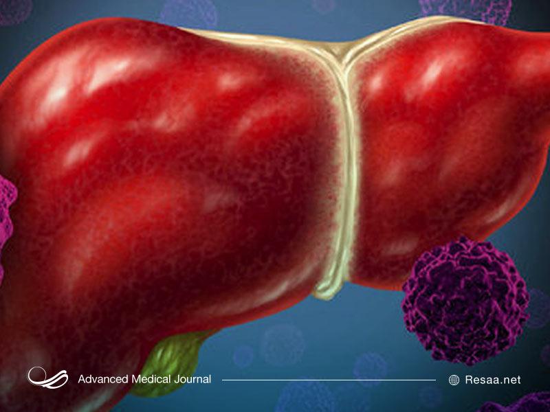 انواع بیماری هپاتیت