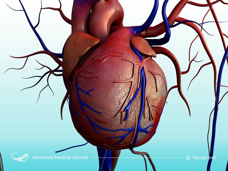 درمان بزرگ شدن قلب