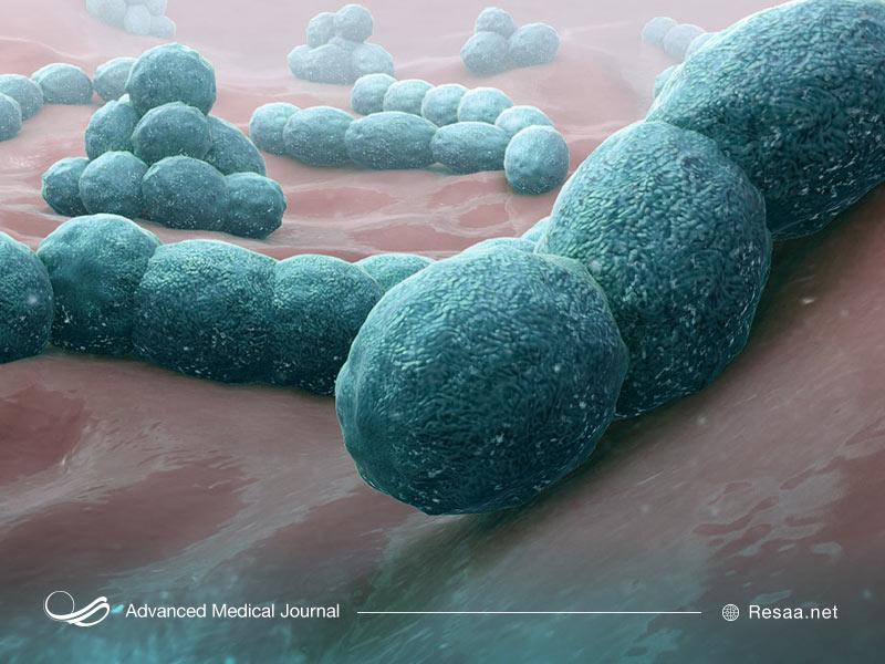 مننژیت باکتریایی نادر است
