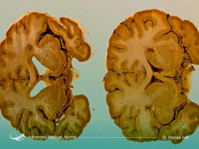 عوارض آتروفی مغزی