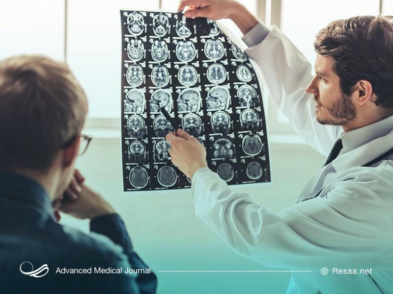 درمان و پیشگیری از اتروفی مغزی