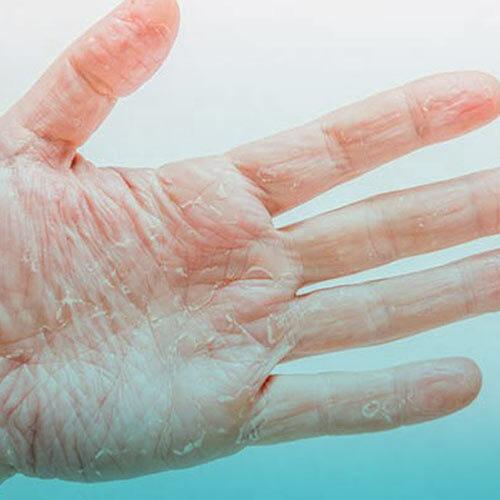 چرا بدن پوست پوست میشود