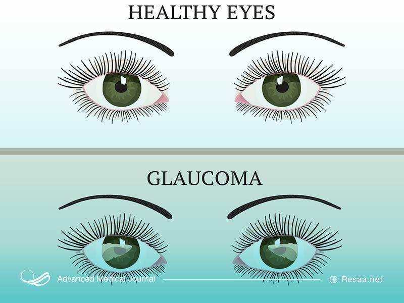 بیماری اب سیاه چشم