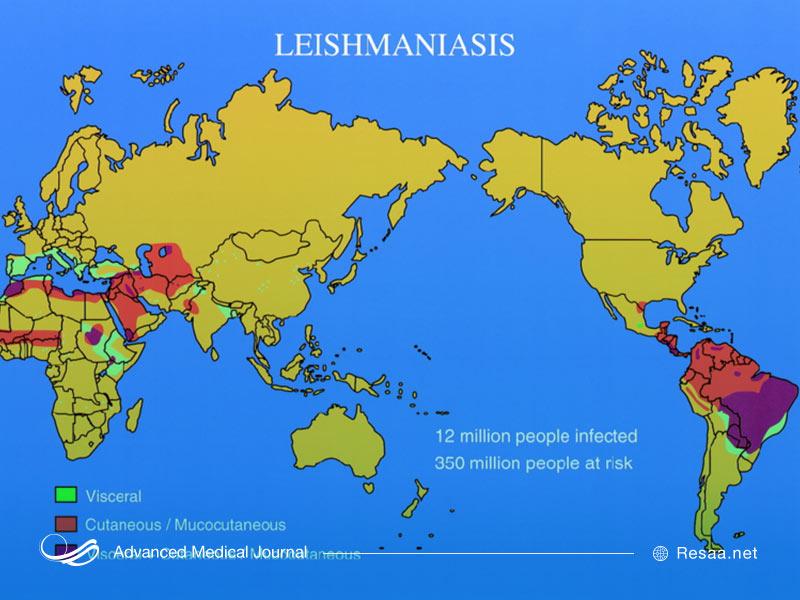 بیماری سالک و نقشه فراگیری آن