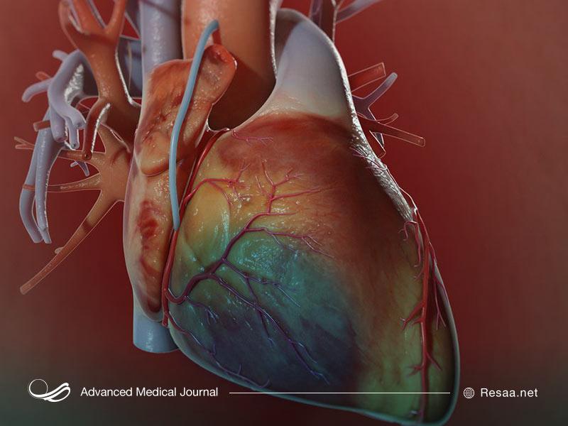 نارسایی قلبی و جراحی قلب