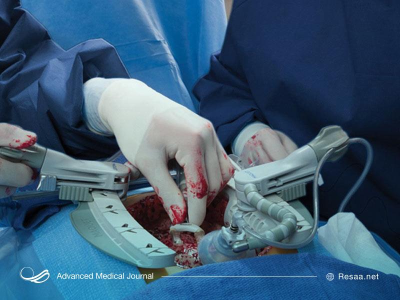 تشخیص نیاز به جراحی بای پس