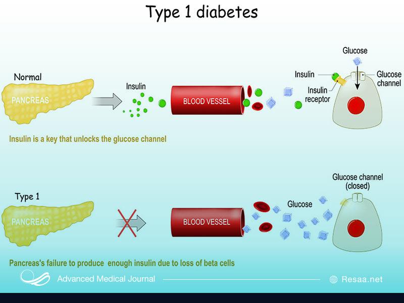 دیابت نوع یک بیشتر در بین نوجوانان دیده میشود