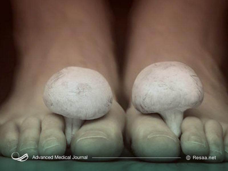 عفونتهای قارچی در بیماران دیابتی