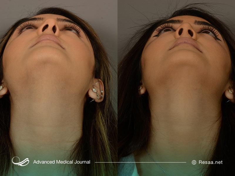 تصویر قبل و بعد از سیتوپلاستی