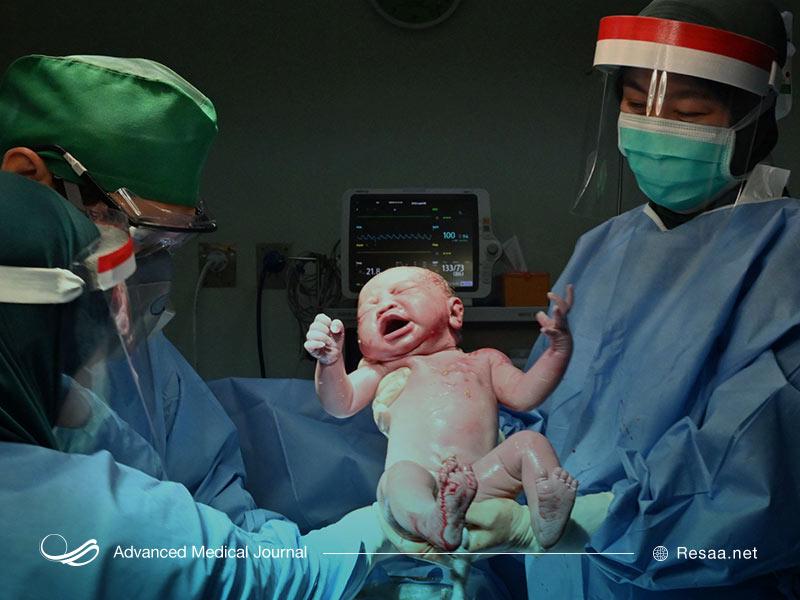 زایمان و تولد نوزاد
