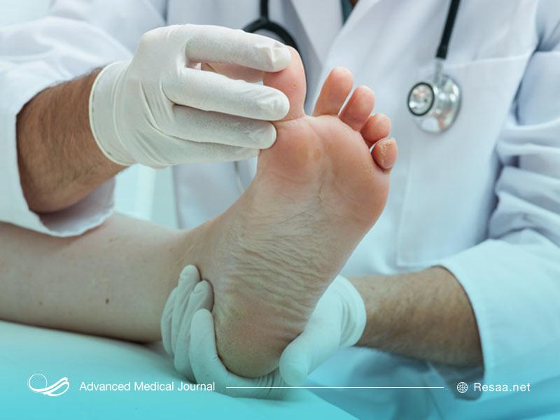 شناسایی سندروم پای بیقرار