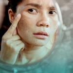 علت و درمان پیری زودرس پوست چیست؟