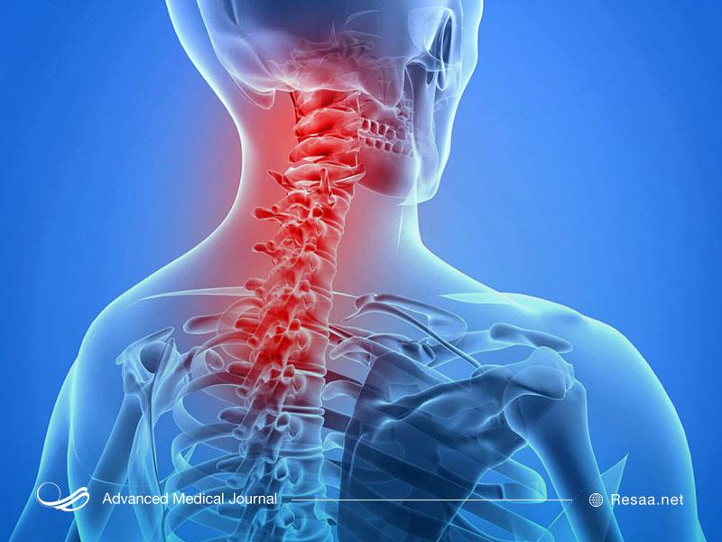 درد ستون فقرات و مهره های گردن