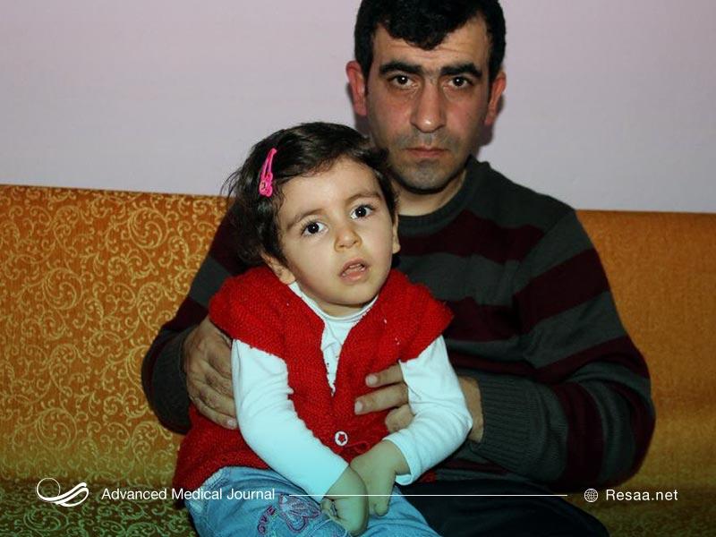 کودکی دچار سندروم ایکاردی
