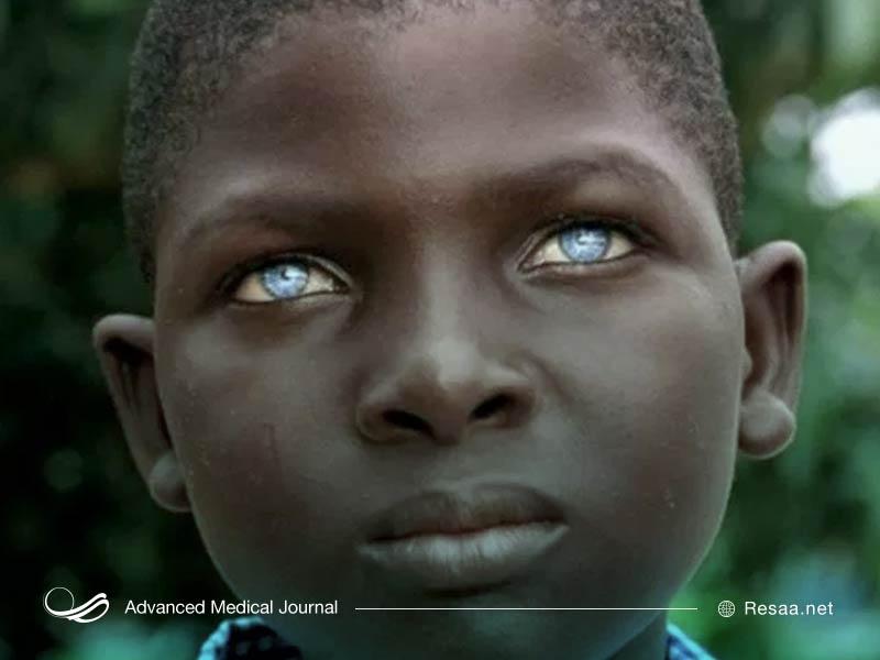 آلبینیسم چشمی پوستی