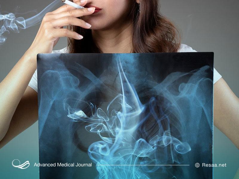 تاثیر سیگار بر ریه ها