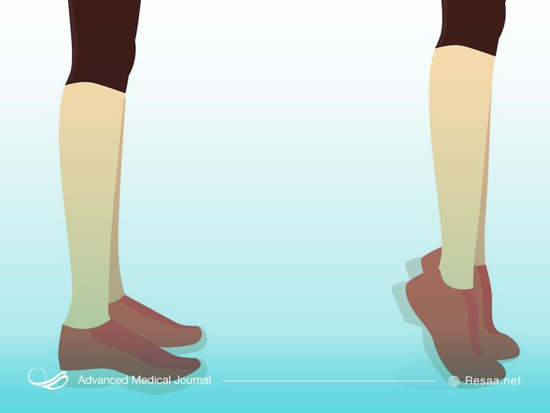 ورزش دادن ماهیچه پا