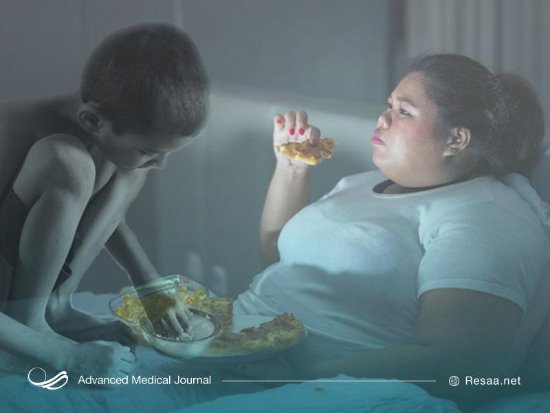 اثرات سو تغذیه