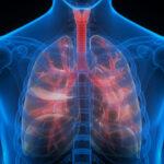 فشار خون ریوی چیست؟ راههای تشخیص و درمان آن