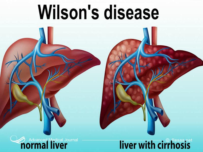 نارسایی کبدی و بیماری ویلسون