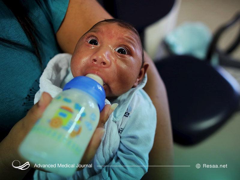 """ویروس سیتومگال مادرزادی """"cytomegalovirus"""""""