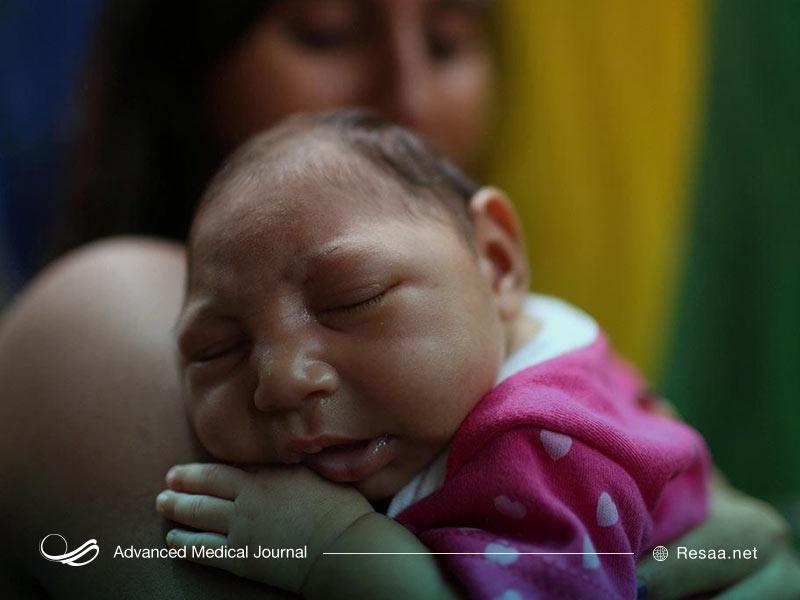 سرخچه هم مادرزادی میتواند سبب بروز میکروسفالی شود